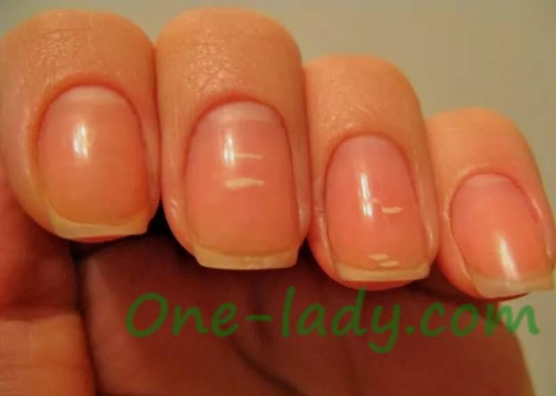 Белые пятна на ногтях пальцев рук фото