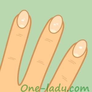 Белые пятна на ногтях фото