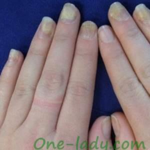 Отслоение ногтей фото