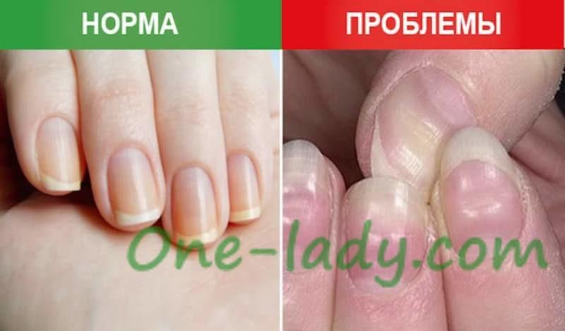 Что означают ямки, вмятины на ногтях фото