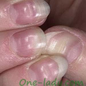 Вмятины ямки на ногтях фото