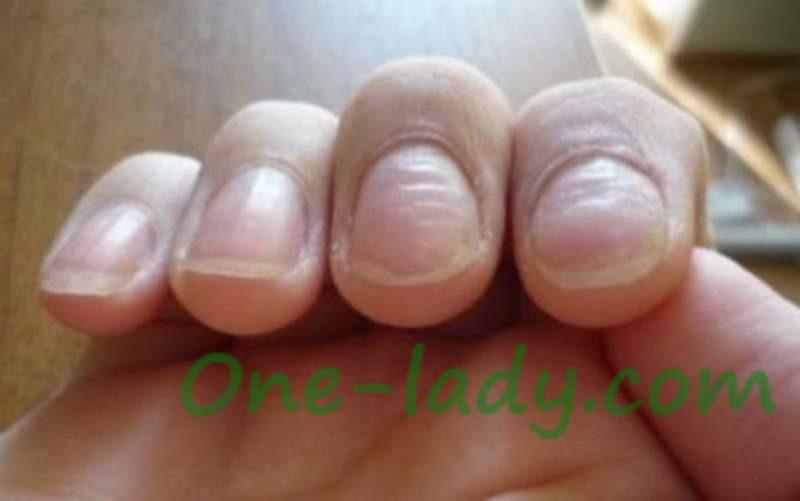 Волнистые ногти на больших пальцах 34
