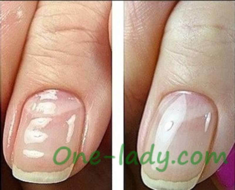 Волнистые ногти фото