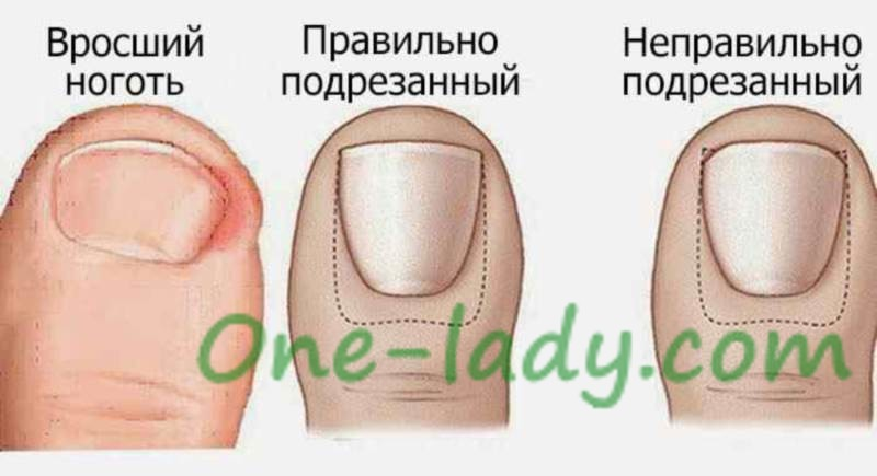 Вросший ноготь на пальце фото
