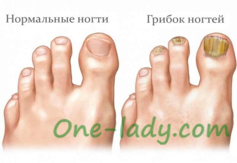 Лечение грибка ногтей фото